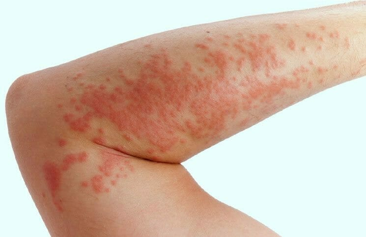 6 Best Essential Oils For Treating Hives - Super Foods Life